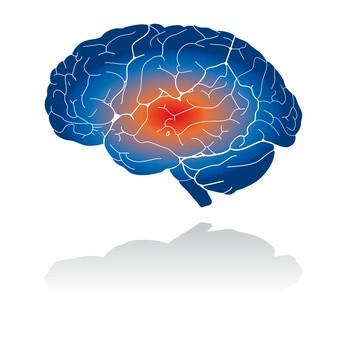 Aivotulehdus